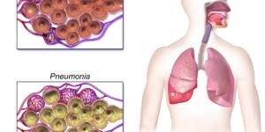 Picture of Pneumonia