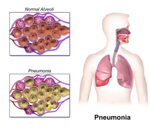 Pneumonia Lung Infection Picture