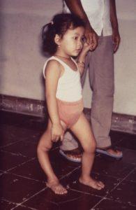 Leg Paralysis from Polio