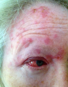 picture of shingles on the face