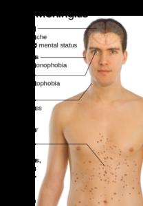 What are the symptoms of bacterial meningitis?